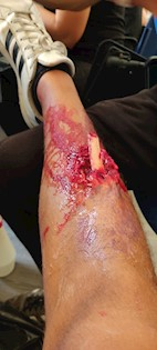 Realističan prikaz ozljeda